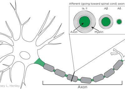 Axon diameter